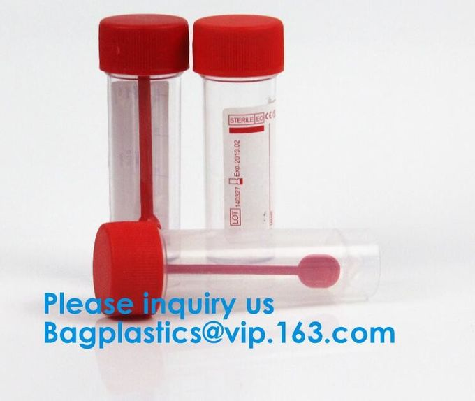 Disposable Urine Specimen Cup/Urine Sample Containers/Urine Collection Cup,Sterile Disposable Hospital Sample 60ml 100